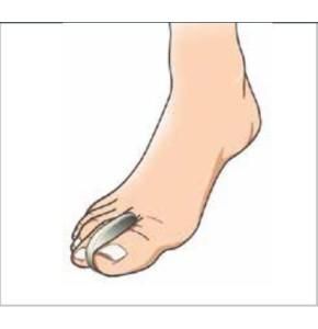 מפריד אצבעות מרופד למניעה והגנה פורטונה Toe Separator Protection
