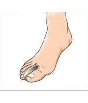 Toe Separator Protection | מפריד אצבעות מרופד למניעה והגנה | פורטונה